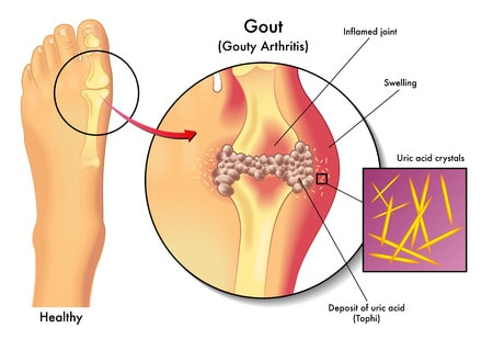 Indian diet Plan for Gout (What to eat and avoid in Gout