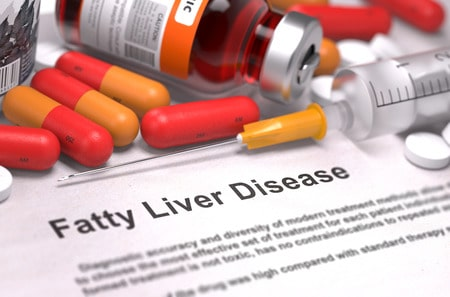 Indian Diet Plan for Non-Alcoholic Fatty Liver Disease ( NAFLD & NASH Diet Chart )