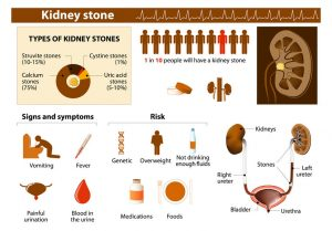 Indian Diet Plan for Kidney Stones