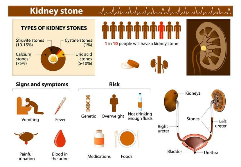 Indian Diet Plan for Kidney Stones